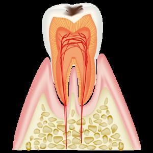 むし歯治療C1