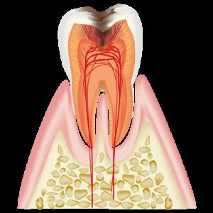むし歯治療C3